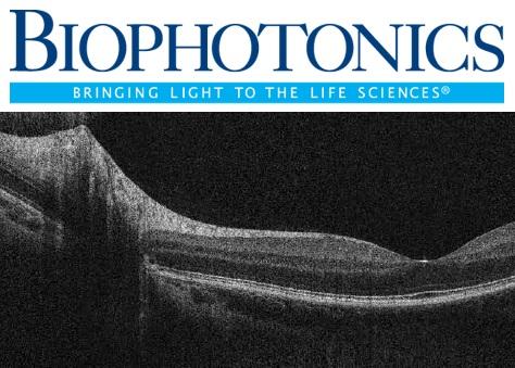 BioPhotonics Magazine, April issue; SS-OCT vs SD-OCT