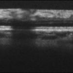 Peripheral retina, Cobra 1050