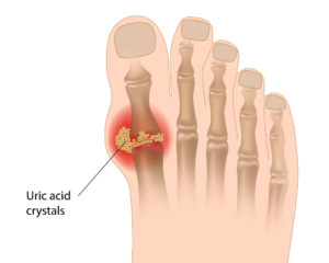 Concentration of MSU crystals in the joints, resulting in gout