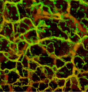 MicroAngio imaging of human skin using 1300 nm light enables blood vessels down to the epidermis to be seen.