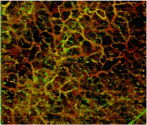Dense vasculature in human skin imaged using MicroAngio with 800 nm light.