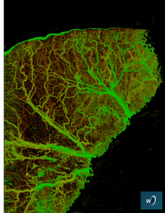 A high-resolution MicroAngio image of a mouse ear using 800 nm light reveals a tremendous amount of vascular structure in fine detail.