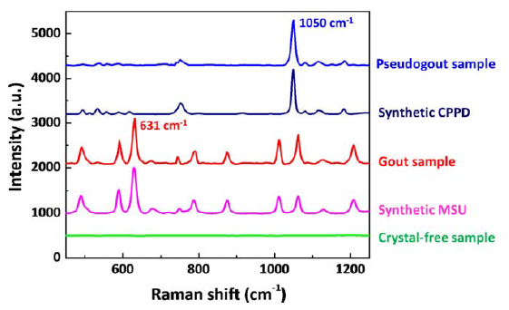 Raman spectroscopy of synthetic & clinical samples containing MSU & CPPD crystals