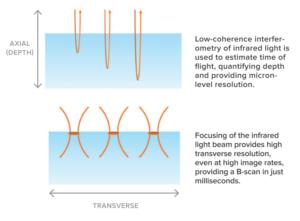 OCT: axial vs transverse