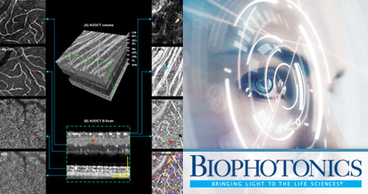 BioPhotonics AO-OCT article