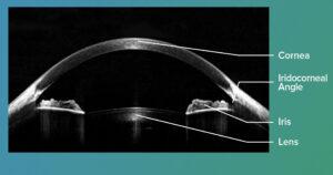 OCT cornea image tabled
