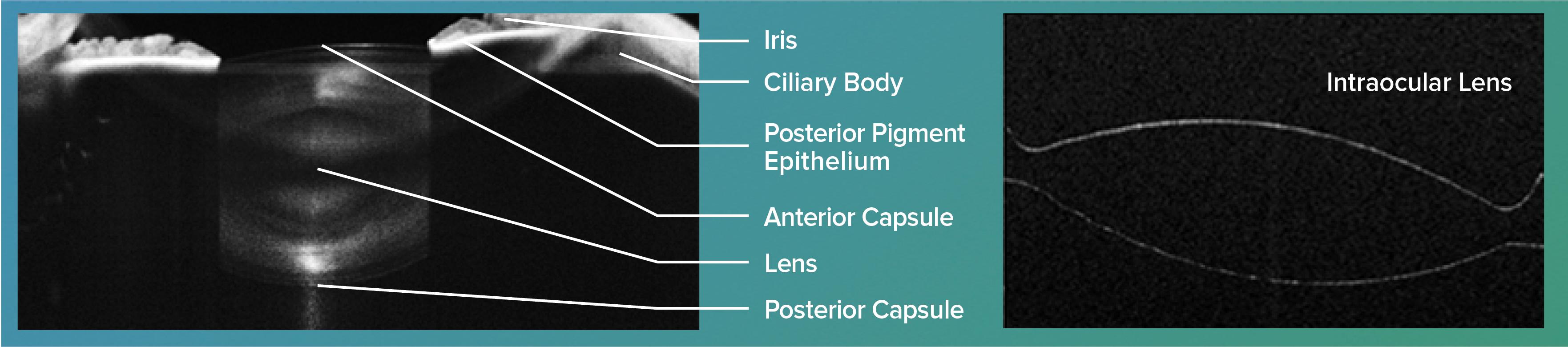 crystalline lens OCT images