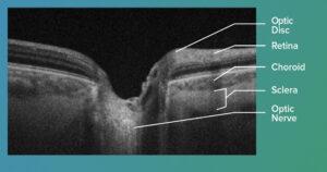 OCT optic nerve image labeled