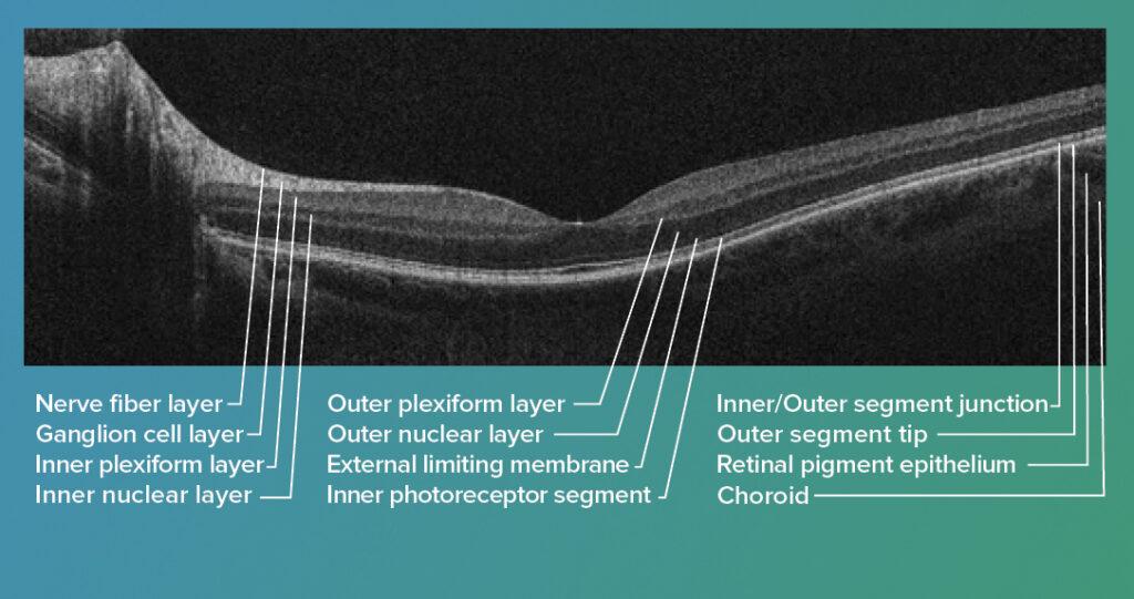 OCT Retina image labeled
