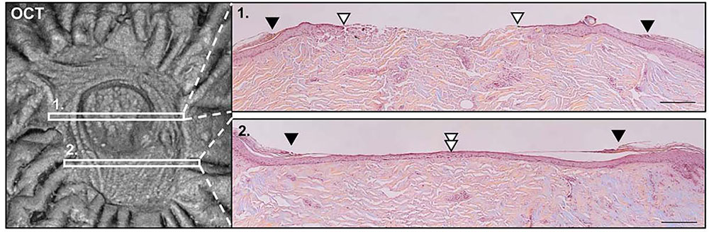 Comparison of en face and histologic evaluation of healing wounds