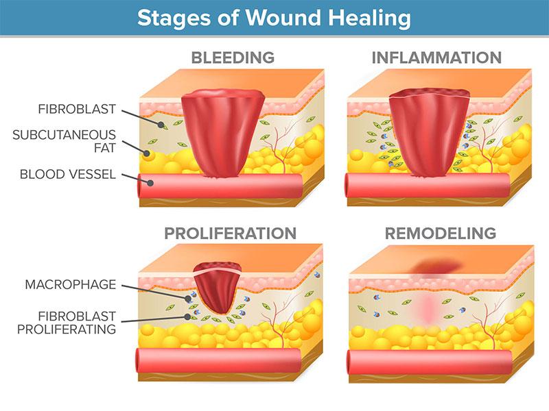Wound healing & OCT